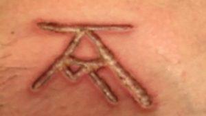 Cicatriz com a marca AM